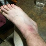 My right ankle was a bit swollen
